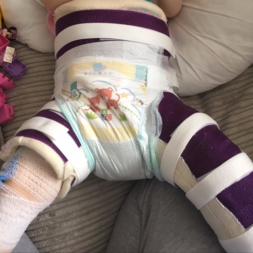 a child in a spica cast as her treatment for hip dysplasia