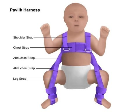 pelvic harness being demonstrated as part of treatment for younger babies with DDH